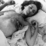 Српкиња из Дивосела коју су усташе мучиле. Италијани је спашавају и односе у своју пољску болницу н. 823 у Оточцу, где је настао овај снимак
