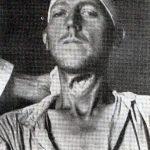 Србин коме су Хрвати пререзали гркљан, фотографисан у италијанској војној болници у Обровцу 8. августа 1941.