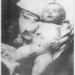 Српче које су Хрвати убили метком из пиштоља у стомак, лета 1941. у Бихаћу. Снимак су начинили италијански војници.